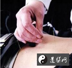 月经不调的中医治疗方法: 按摩和针灸效果俱佳